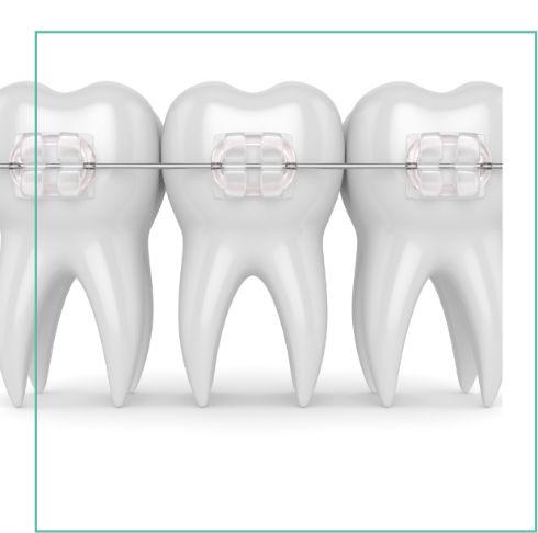 Clínica Dental Villena - Ikident